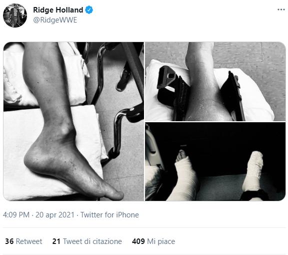 Ridge Holland: le crude immagini della gamba infortunata